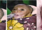 6kk ikäinen Simon kärsi Progeria -syndroomasta näyttäen 100-vuotiaalta. Nakurun Parantumiskokouksessa 1.1.2015 HERRA paransi Simonin HERRAN Väkevän Profeetan julistaessa parantumisen. Kunnia Kaikkivaltiaalle JUMALALLE! (Ps. 107:20)